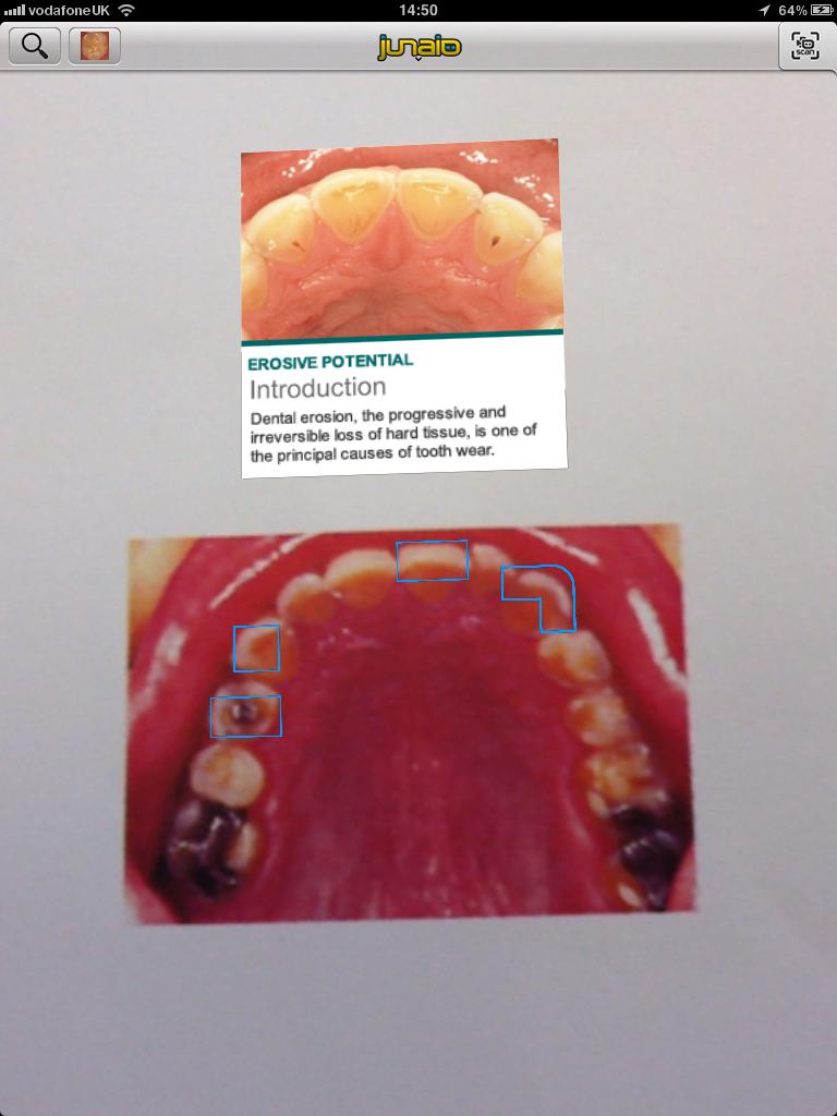 Dental corrosion
