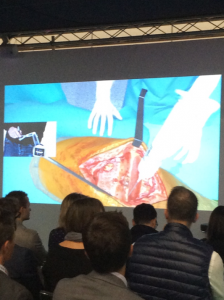 Surgery in VR with Haptic